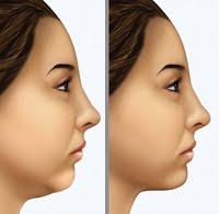 cirurgia plástica do pescoço