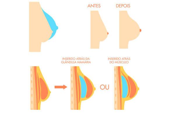 Imagem grandulas mamárias com prótese