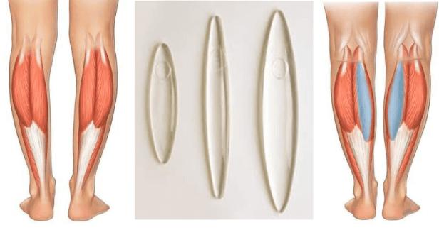 implante de silicone antes e depois