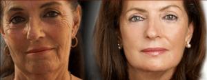 Antes e Depois do Lifting Cervical
