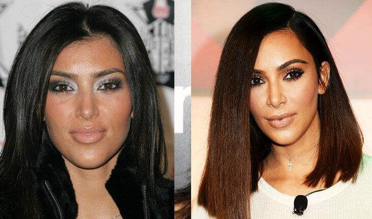 kim kardasha antes e depois da cirurgia para diminuir as bochechas