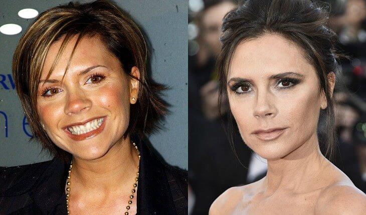 Victoria antes e depois da cirurgia para diminuir as bochechas
