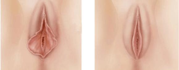 cirurgia dos grandes labios