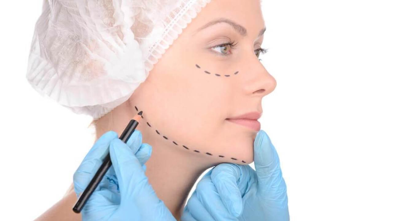 Cirurgia Diminuir o Queixo