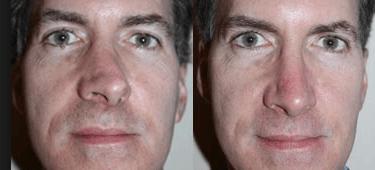 nariz masculino torto antes e depois da rinoplastia