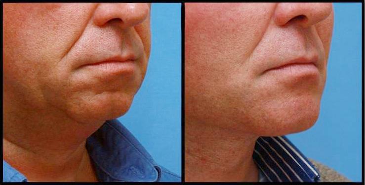 Imagens de antes e depois da mentoplastia