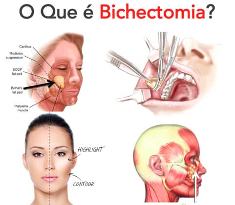 cirurgia da bochecha