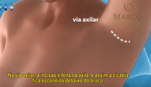 Corte Silicone via axila