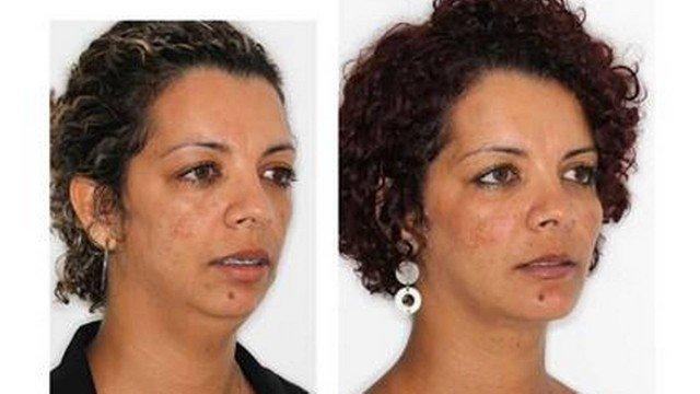 Cirurgia de Queixo - Antes e Depois