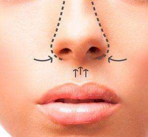 Cirurgias da Face 1