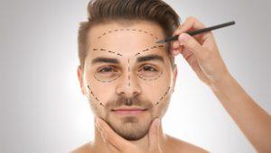 modelo masculino com demarcação no rosto de rinoplastia