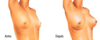 Seios após a mamoplastia de aumento