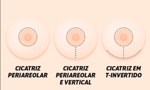 cicatrizes de incisão periareolar