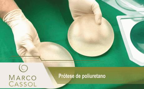 imagem de cirurgião com uma prótese na mão