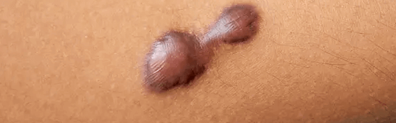 imagem de cicatriz irregular da abdominoplastia