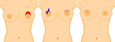 mastopexia incisão periolar