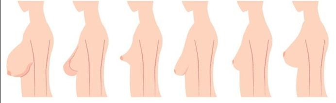 Cirurgia Para Levantar a Mama [Lifting de Mama] 1