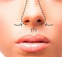 Cirurgia de Nariz – Rinoplastia