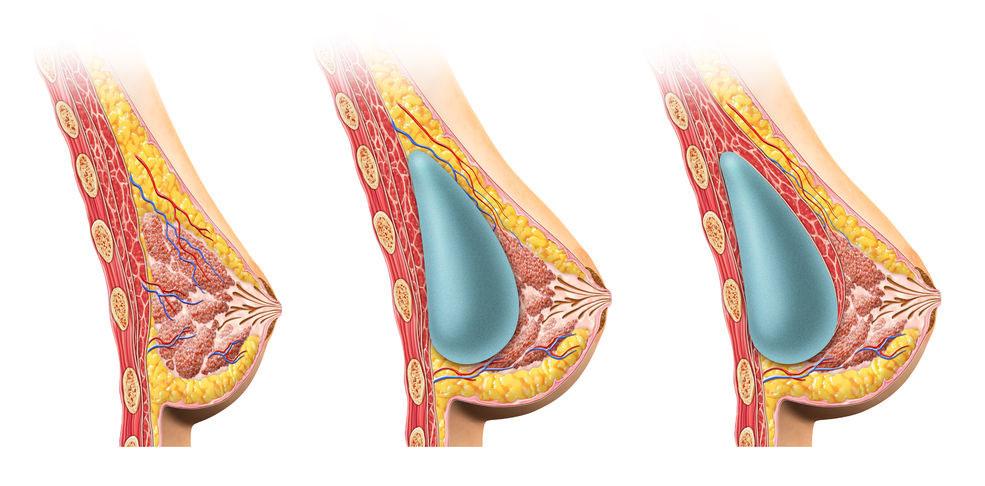 Musculo Peitoral com Silicone