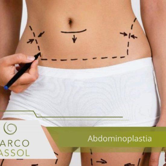 Barriga - Abdominoplastia