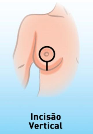 Cirurgia Para Levantar a Mama [Lifting de Mama] 5