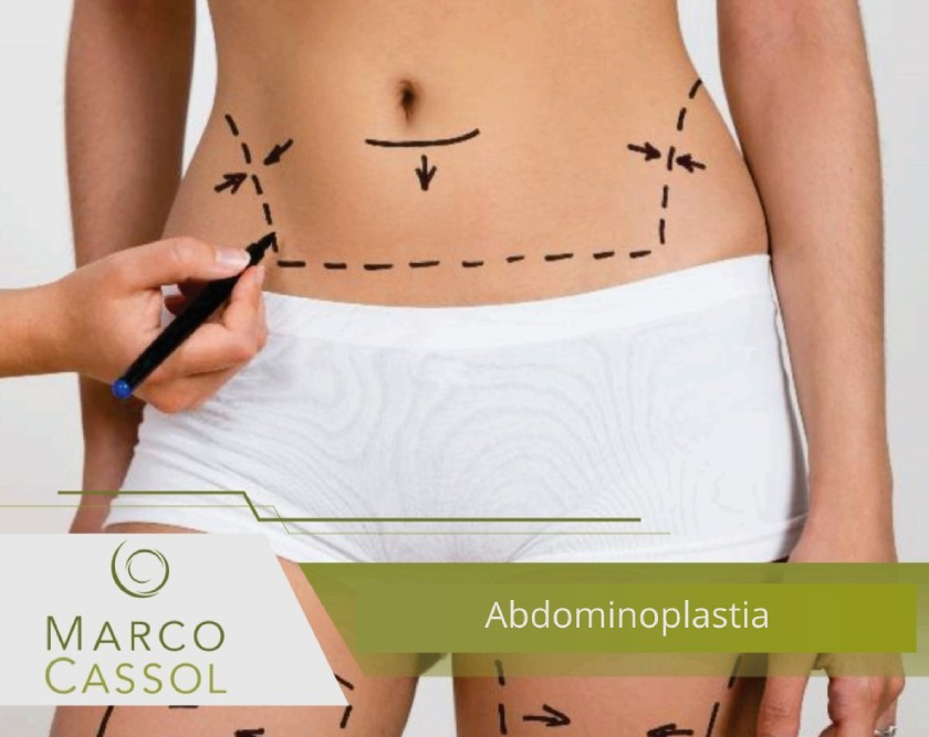 Abdominoplastia 2