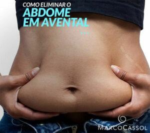 Abdominoplastia 3
