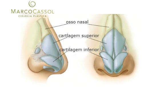 Rinoplastia - Cirurgia no Nariz 1