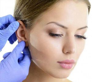 cirurgia para orelha grande