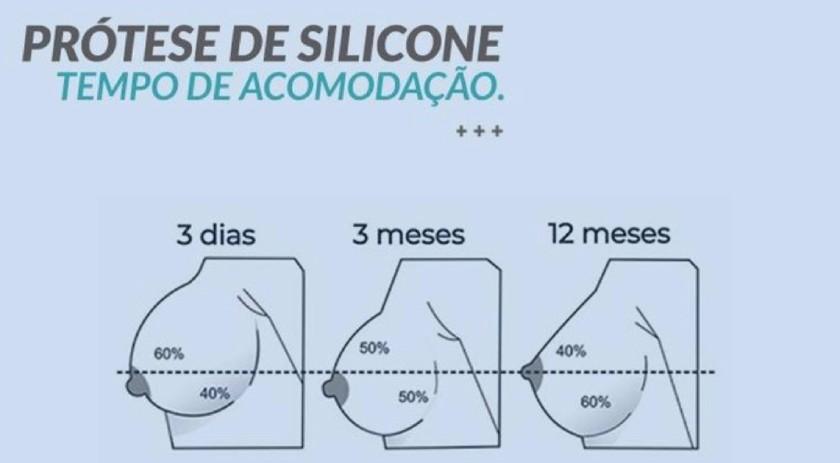 acomodacao das proteges de silicone