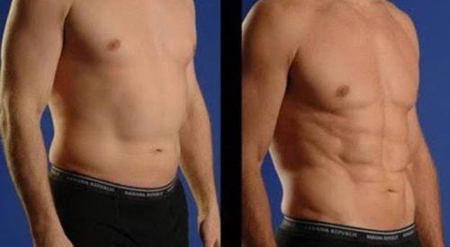 antes e depois lipoaspiração masculina