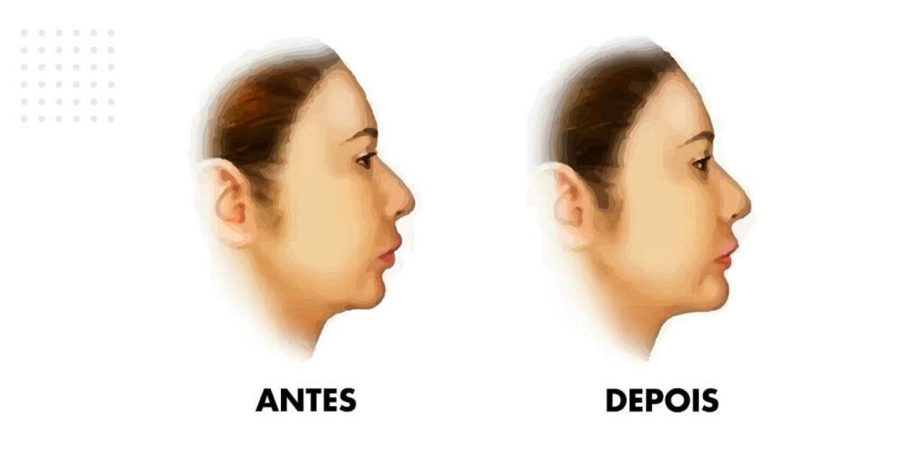 resultados da mentoplastia