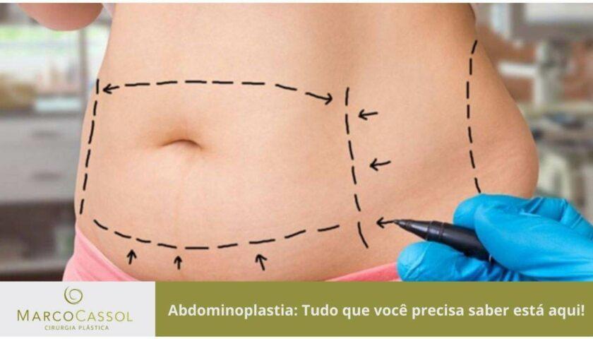 Abdominoplastia-tudo-que-voce-precisa-saber-esta-aqui-imagem-destaque