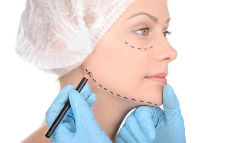 Cirurgia plástica - cirurgia no queixo