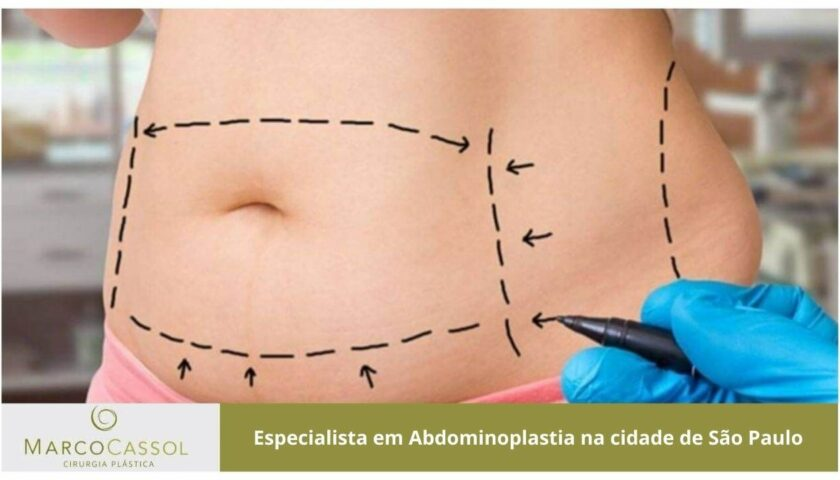 imagem em destaque abdominoplastia na cidade de sao paulo