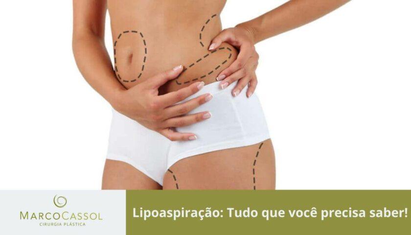 imagem em destaque lipoaspiracao na cidade de sao paulo