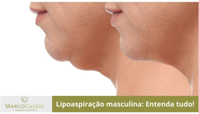 imagem em destaque do artigo sobre lipoaspiração de papada