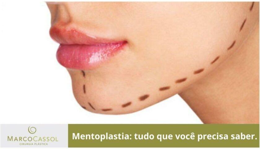 imagem em destaque sobre mentoplastia