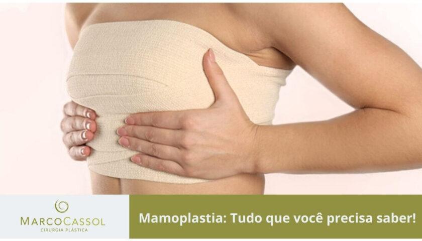 imagem destacada do post tudo sobre mamoplastia