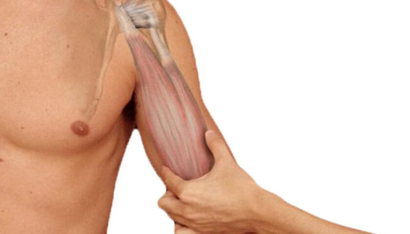 protese de biceps
